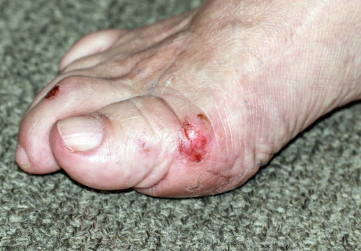 Wound on the right foot  knuckles cause of medical error- On skin the remains of sticking plaster