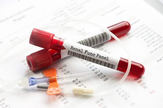 Renal function blood test tubes