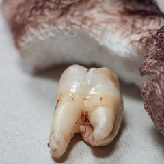 Torn tooth with bloody gauze