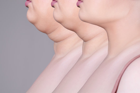 Double chin, skin rejuvenation on the neck, before after anti aging concept