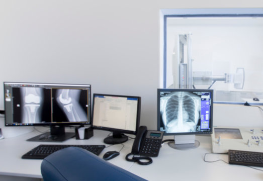 Monitor with X-ray of human body parts in modern laboratory