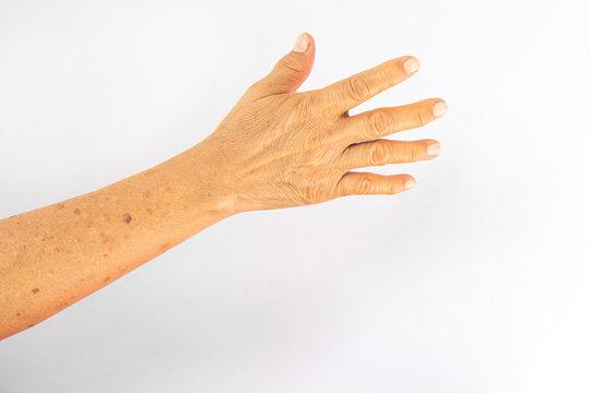 Senile lentigo .right hand on white back ground
