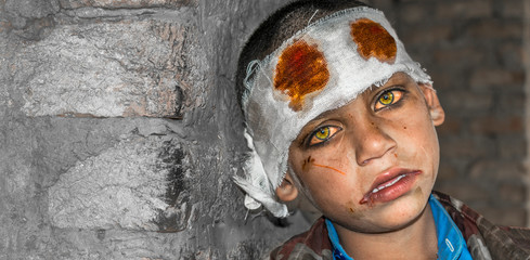 a young lonely missing crying injured child is frightened cause of war and child abuse and having bandage on his head    Fototapete