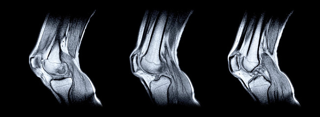 Magnetic resonance imaging (MRI) of right knee. Closed injury of the knee joint, with manifestations of arthrosis.