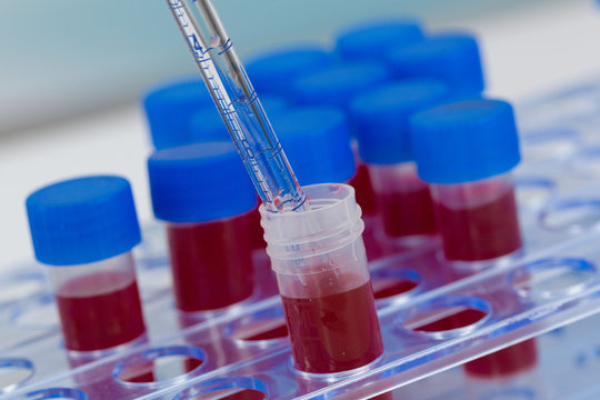 close up of handling blood with pipette on a tube rack
