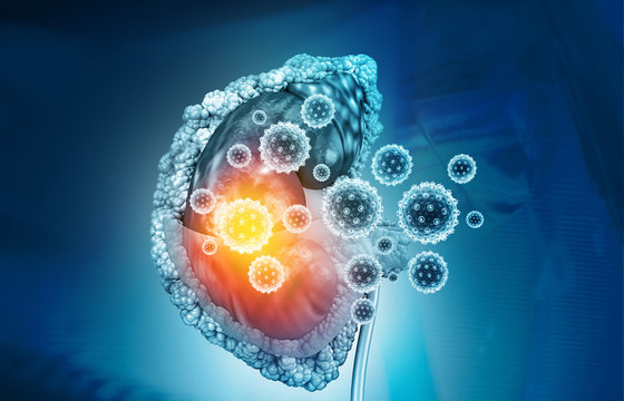 Kidney disease concept. 3d illustration