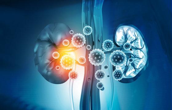 Kidney disease concept. 3d illustration.