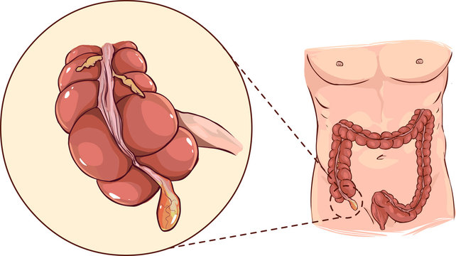 Vector illustration of a with detail of an appendicitis