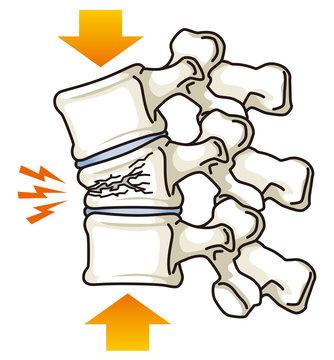 骨折がある脊椎 圧迫骨折