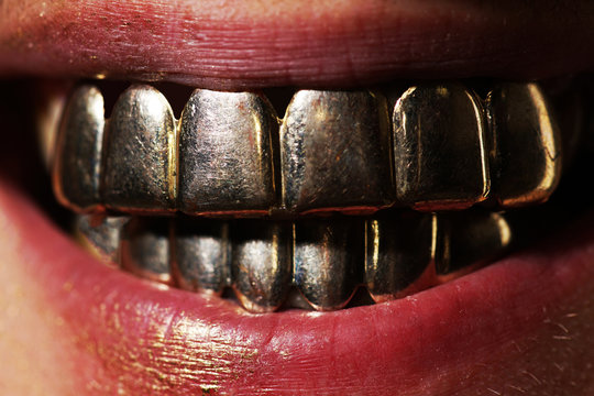 Golden smile. Man laughing in gold teeth. Expensive close up man smile with gold teeth. Gold metallic teeth. Mens golden smile close up.