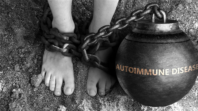 Autoimmune disease as a negative aspect of life - symbolized by word Autoimmune disease and and chains to show burden and bad influence of Autoimmune disease, 3d illustration