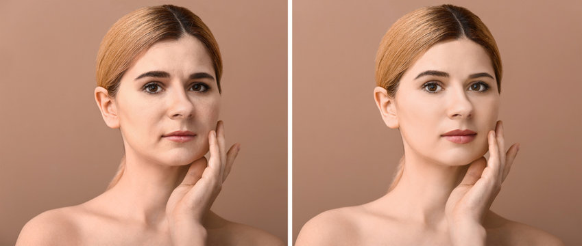 Comparison portrait of woman before and after filler injection on color background