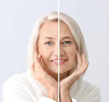 Comparison portrait of mature woman after and before filler injection on light background
