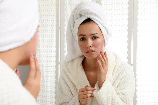 Teen girl with acne problem near mirror in bathroom