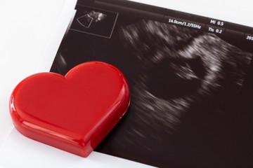 赤ちゃんの超音波写真とハート