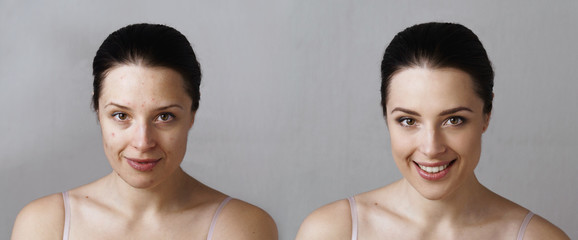 Comparison photo of woman with smiling face before and after treatment