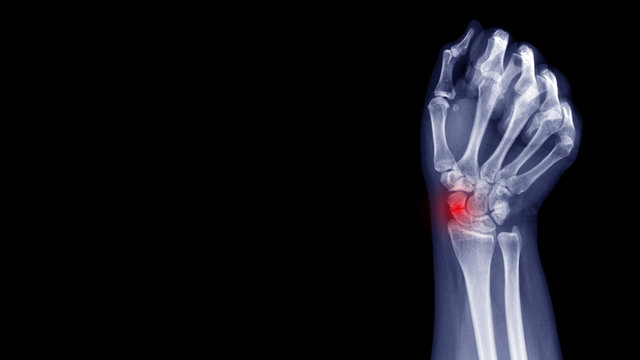 Film X-ray wrist radiograph show carpal bone broken (scaphoid fracture) from falling. Highlight on broken site and painful area.  Medical imaging and orthopedic technology concept