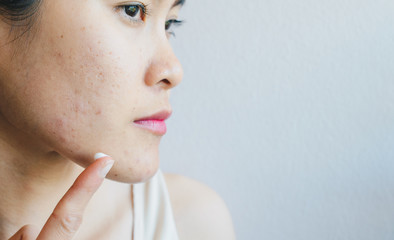 Portrait of young Asian woman having acne problem. Conceptual of woman trying to applying acne cream on her face.