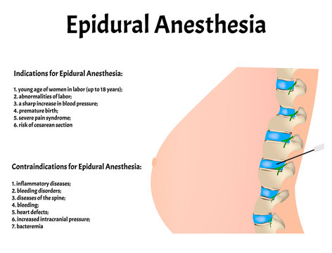 Epidural anesthesia during childbirth. Epidural anesthesia of pregnant women. Indications and contraindications. Vector illustration