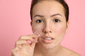 Teen girl applying acne healing patch on light pink background