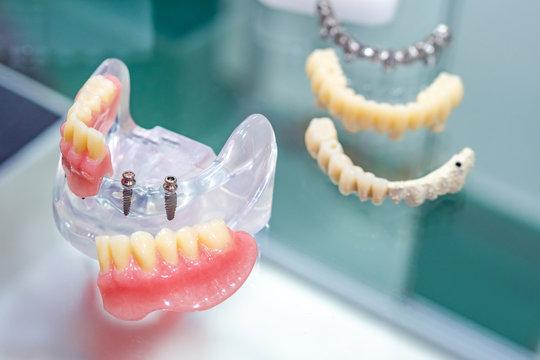Removable acrylic denture. Work as a dentist. Prosthesis on mini implants. Equipment for the orthodontist's office. Career of a dental technician. Dental prosthetics. Dental treatment.