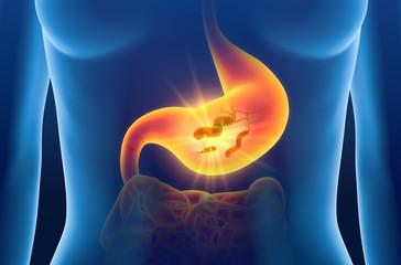 Gastritis, escherichia coli bacteria in stomach, medically concept, 3D illustration