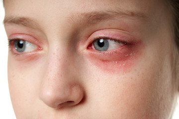 Allergic reaction, skin rash, close view portrait of a girl's face. Redness and inflammation of the...