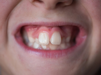 Problems with the teeth of a young boy. Not the correct bite