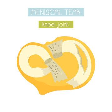vector illustration of meniscal tear of knee joint