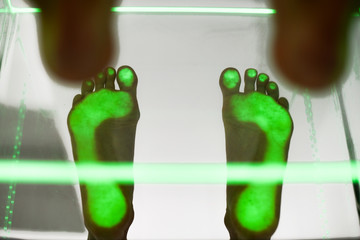 Health care foot procedure analysis by step green scanning.
