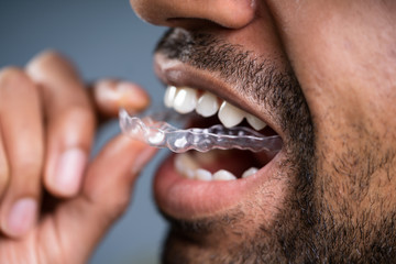 Man Putting Transparent Aligner In Teeth