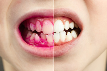 Plaque disclosing tablets in work. Before and after - effect. close up photo of young boy tooth. Dental plaque pill concept