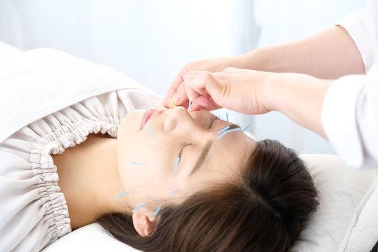 鍼灸院で顔に鍼を打たれる女性と施術者の手元