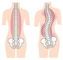 まっすぐな背骨 歪んだ背骨 脊椎側弯症