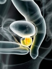 Human prostate cancer, illustration