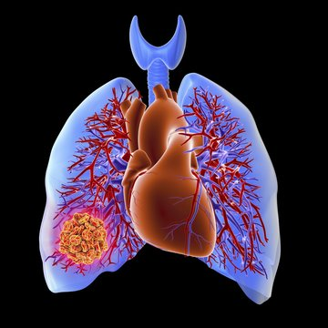 Pulmonary embolism, artwork