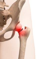 Broken hip bone, Illustration