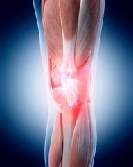Human knee pain