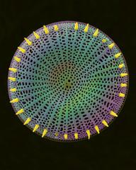 Centric fossil diatom frustule, SEM