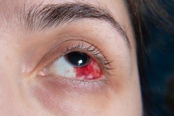 Hemorrhage in the eye of a girl. Abrasion of the cornea. Macro.