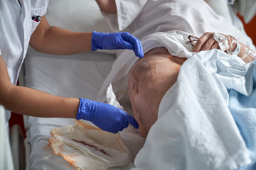 From above anonymous medical assistant cleaning fresh surgical suture of crop senior patient in hospital