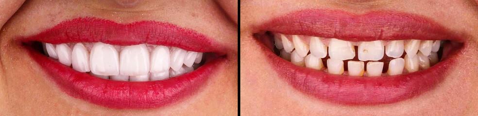 beautiful smile created by press ceramic veneers