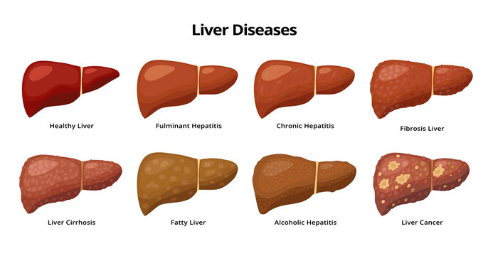 Healthy Liver and Liver diseases - fatty liver, hepatitis, fibrosis, cirrhosis, alcoholic hepatitis, liver cancer - medical infographic elements isolated on white background.