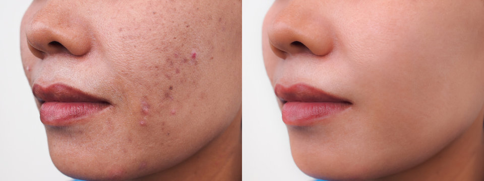 Image before and after dark spots scar acne and melasma pigmentation skin facial treatment on face asian woman.Problem skincare and health concept.