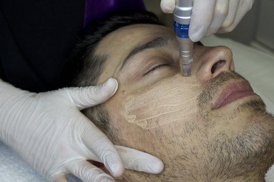 microneedling microneedling facial bb glow close-up man