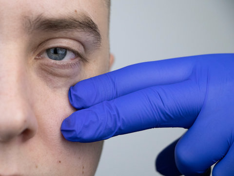 Bags under the eyes, hernias on the face of a man. Plastic surgeon examines a patient before blepharoplasty