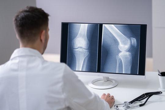 Doctor Examining Knee X-ray