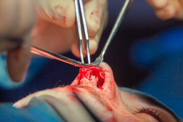 Surgeon and his assistant performing cosmetic surgery on nose in hospital operating room. Nose reshaping, augmentation. Rhinoplasty.