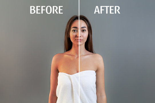 The concept of sunburn. A young woman in a bath towel poses on a gray background. Skin with and without sunburn. Copy space. Before and after