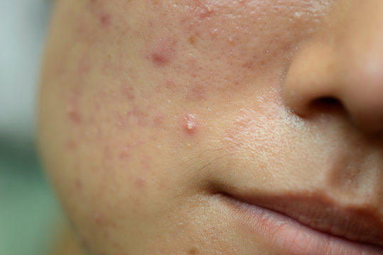 Young Asian woman showing her face with acne and moles